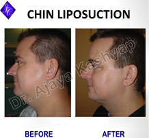 double chin liposuction cost in india