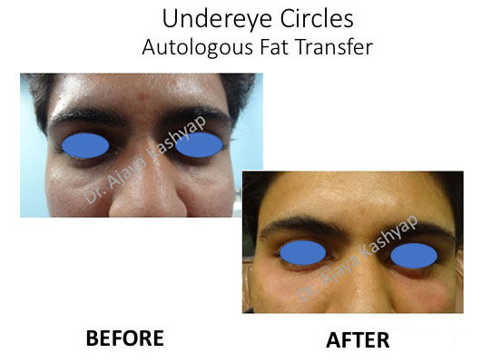autologous fat transfer