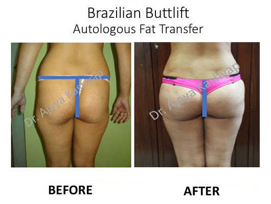 brazilian butt lift surgery in delhi