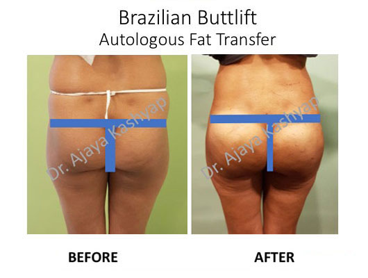 brazilian butt lift surgery in india